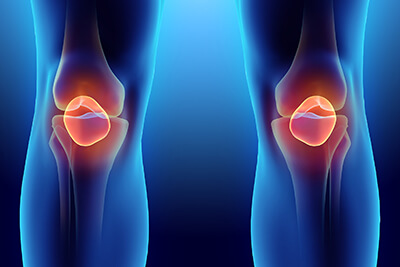 Stem Cell Injections for Meniscus Tear in San Antonio, TX